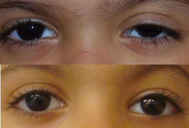 Two Year Old Undergoes Eyelid Surgery In Dubai Emirates 24 7