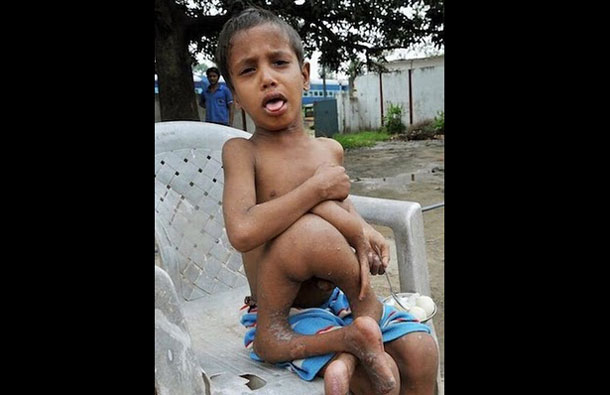 Eight year old Kumar Paswan from a remote Indian village who has an astonishing medical condition. (AGENCY)