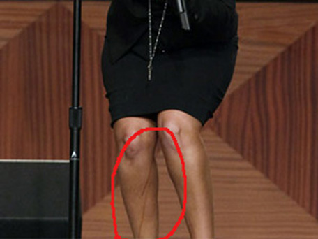 The dripping fake tan in Christina Aguilera's leg. (REUTERS)