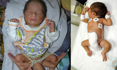 6-legged baby doing well after major surgery - Emirates24 7