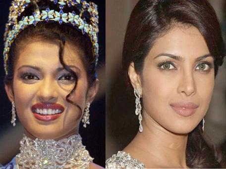 Is Priyanka Chopra Lying About Plastic Surgery Emirates24 7