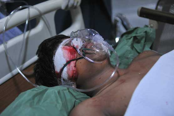An injured person receives treatment at the Omini hospital Kothapet in Hyderabad on February 21, 2013. (AFP)