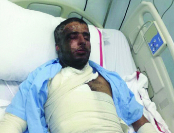 Fahd Al Kaabi is one of the two Emiratis who survived the sword attack in Al Warqa. (Al Bayan)