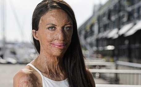 Bush fire victim ex-model Turia Pitt engaged to Michael Hoskin