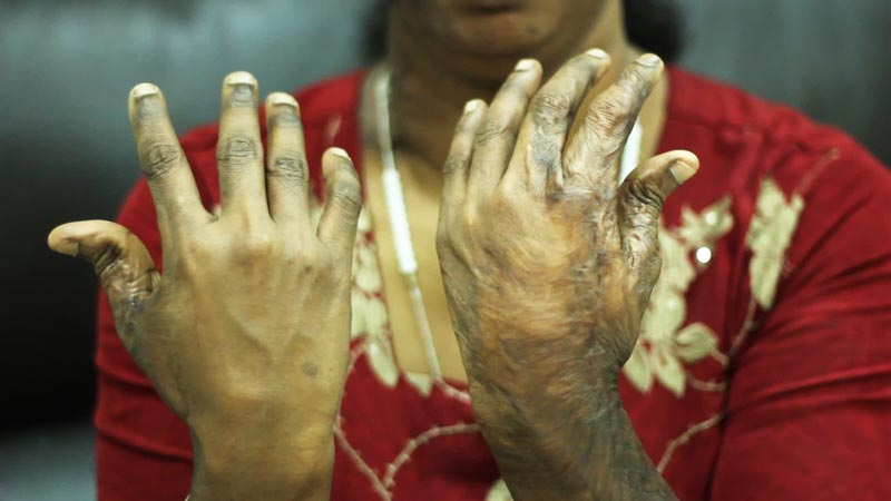 Rajamma's hands were severely burnt in a suicide attempt while she was in India. (Supplied)