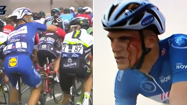 Kittel re-enacts the punch, and blood is seen streaming down his face. Pic: Twitter