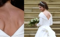 Photo: Princess Eugenie's wedding dress shows off scar