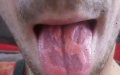 Photo: Teacher left with blistered tongue due to energy drinks