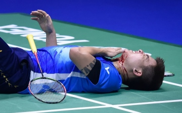 Photo: Bloodied Malaysia exit Sudirman Cup after freak injury
