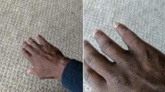 Photo: Tesco stocks skin tone plasters
